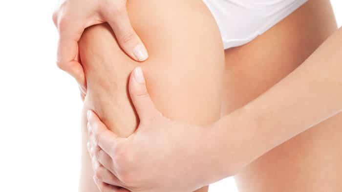 Problemzonen - Cellulite am Bein